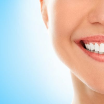 dental veneers costa rica feature
